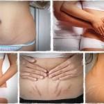 8 biện pháp tự nhiên để loại bỏ vết rạn da