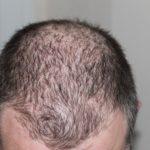 Rụng tóc ở nam giới và đi tìm một giải pháp hiệu quả